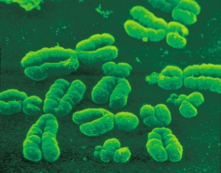 Cromossomos já bem definidos (foto: reprodução)