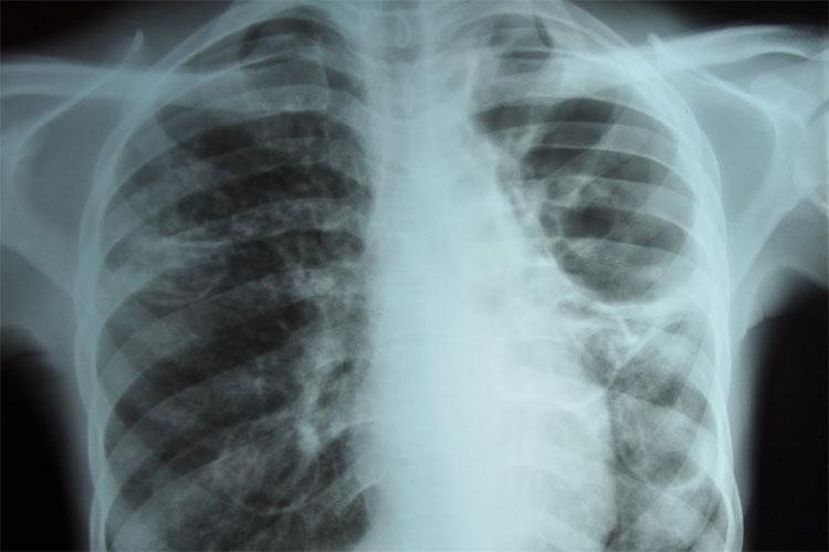 Manchas esbranquiçadas no raio x revelam a tuberculose