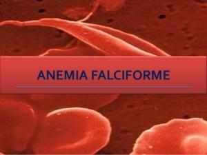 Anemia Falciforme (Foto:Reprodução) Créditos de imagem:http://pt.slideshare.net/
