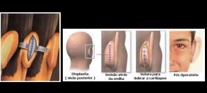 cirurgia orelha