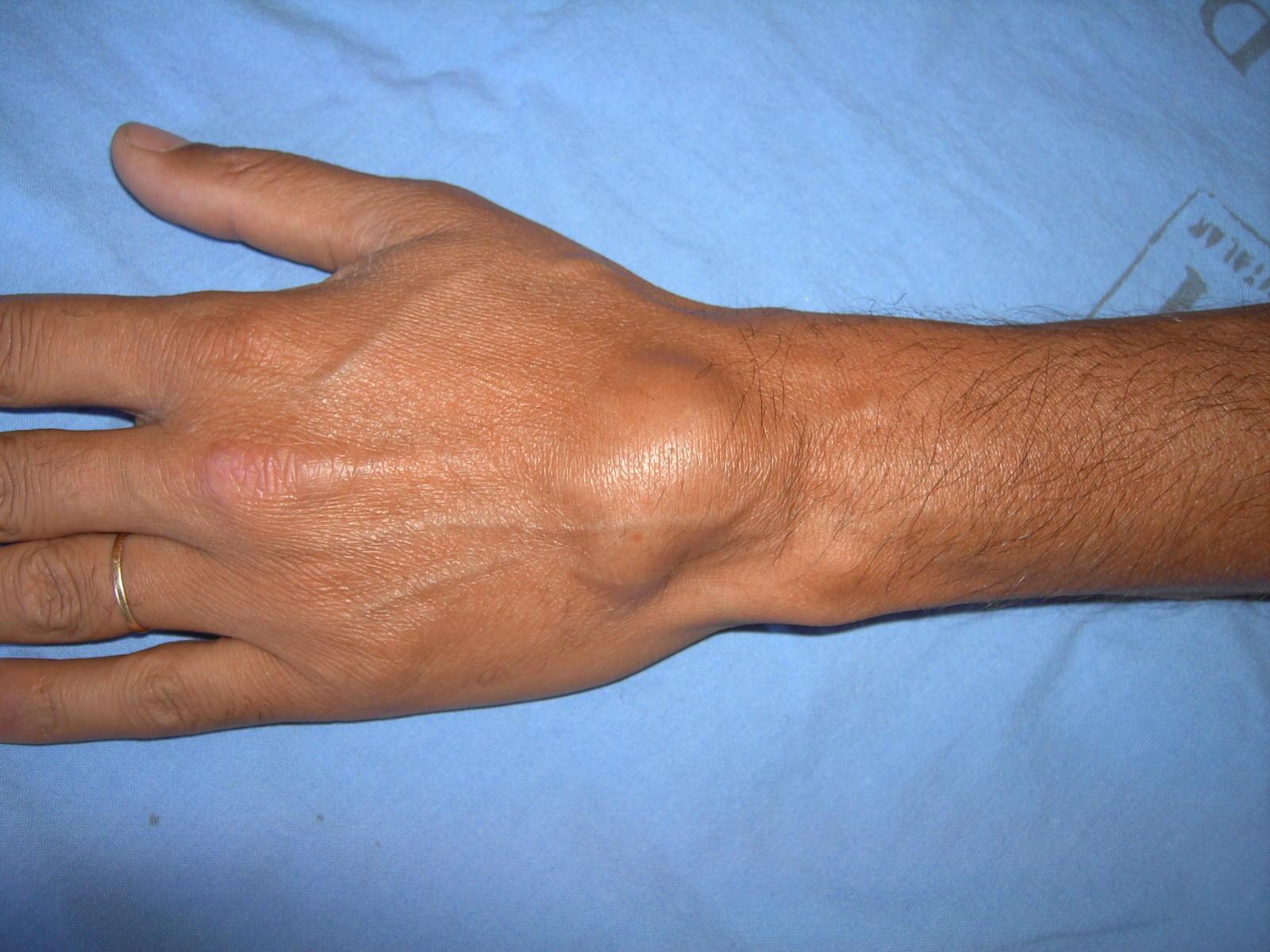 Cisto Dermoide