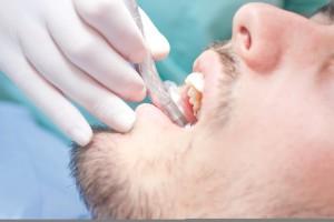 Os tratamentos de canal visam eliminar as dores e impedir a extração do dente.