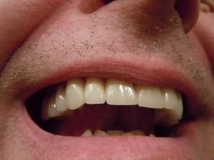 Boca de homem