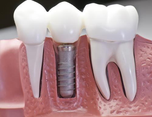 Esquema de implante dentário.
