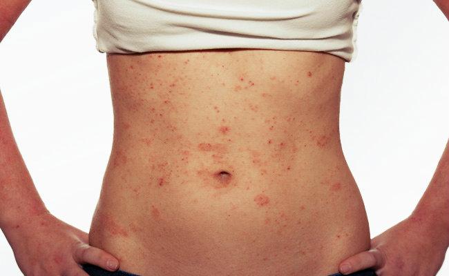 As manchas vermelhas podem ser uma grave doença denominada Púrpura Trombocitopênica Idiopática