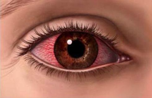 Os olhos vermelhos acompanhados de dores de cabeça, geralmente estão ligados ao estresse