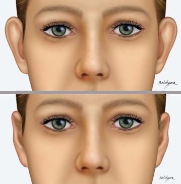 A otoplastia é um procedimento cirúrgico capaz de consertar as orelhas de abano