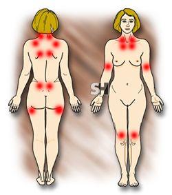 A Fibromialgia se desenvolve aos poucos e é uma doença que não pode ser diagnosticada através de exames laborais