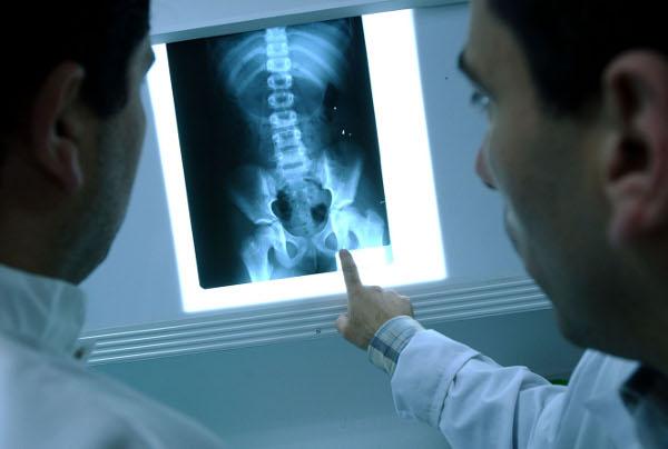 O raio x é um processo necessário para exames internos, é um auxílio ao médico