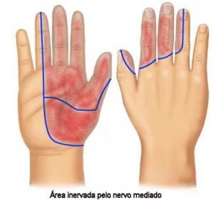 Síndrome de carpo é uma doença que afeta desde os dedos das mãos, até os punhos.