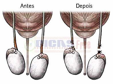 O processo cirúrgico tem como finalidade cortar o canal reprodutor do homem